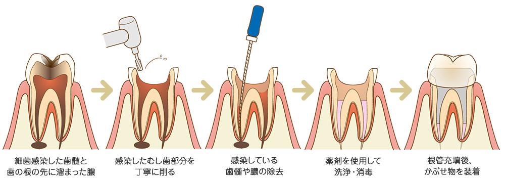 根管治療の流れ